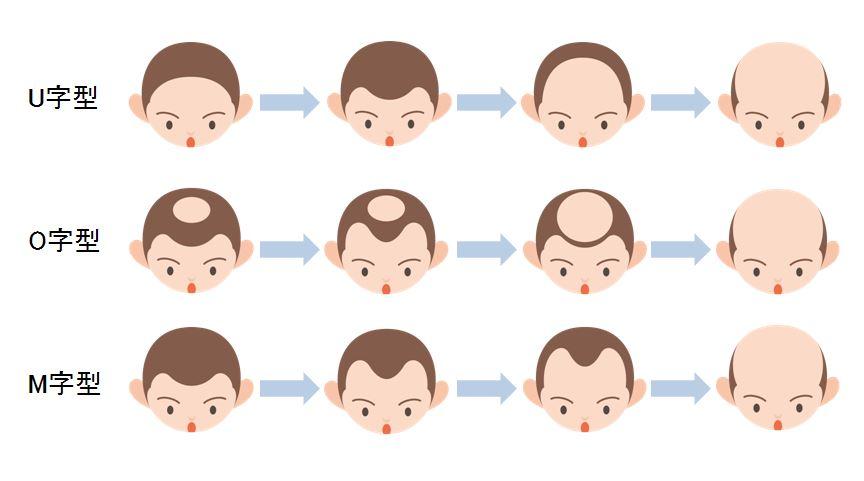 AGAの症状パターン